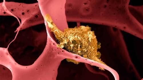 Vacina contra câncer é eficaz em 100% dos testes, diz pesquisa